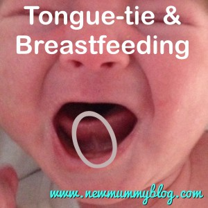 newmummyblog tongue-tie and problems breastfeeding